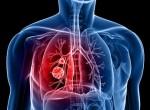 درمان اختلال مزمن تنفسی با ورزش